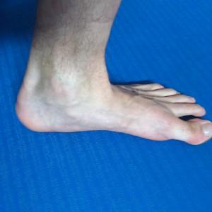 Obniżony łuk stopy