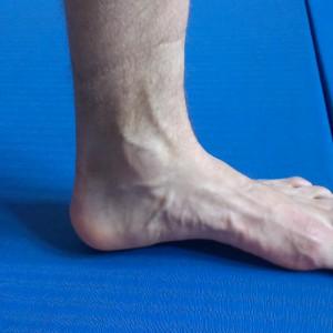 Prawidłowy łuk stopy